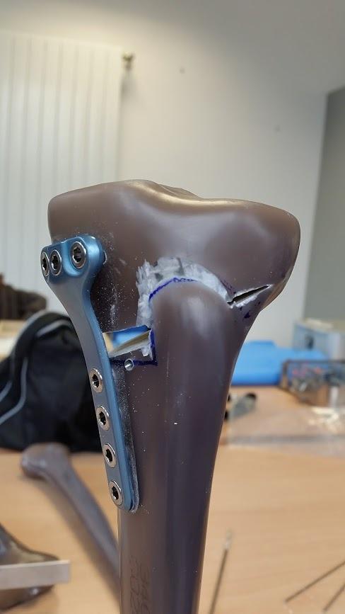 Osteotomia, come allontanare la protesi di ginocchio